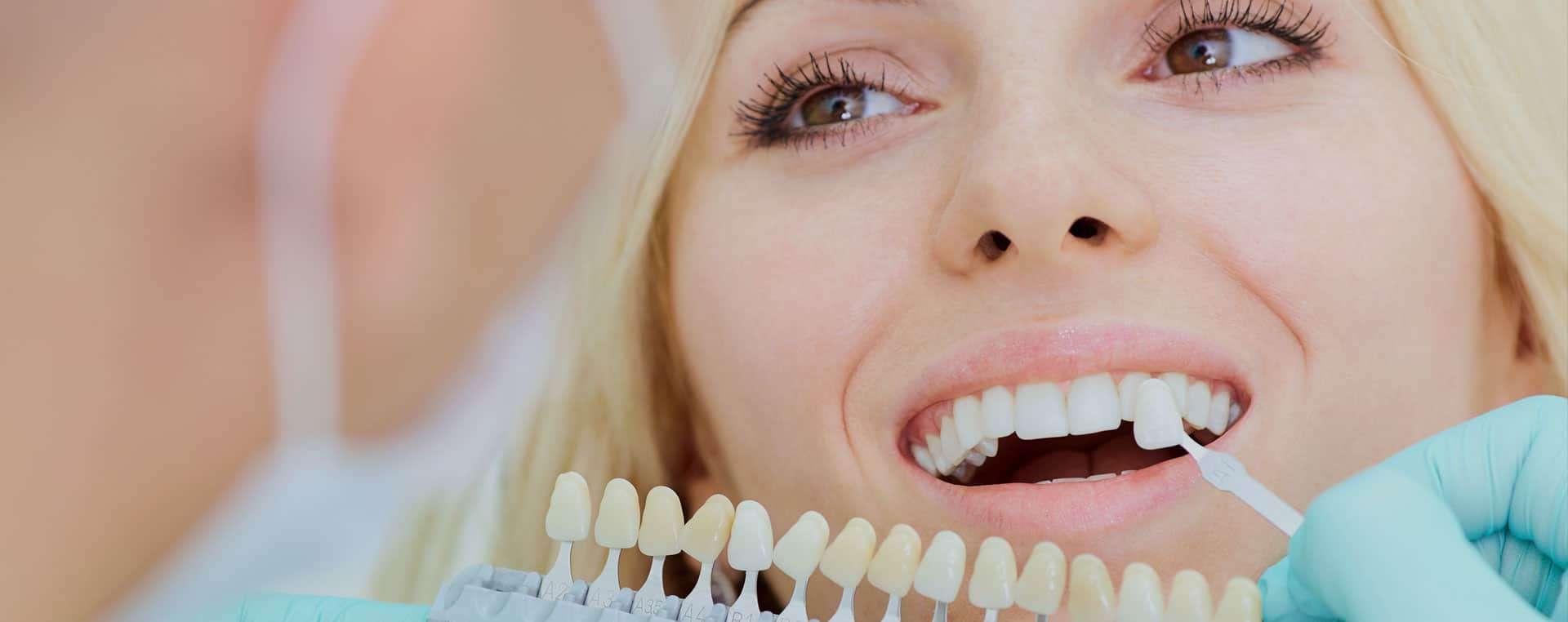 veneers dentist yardley