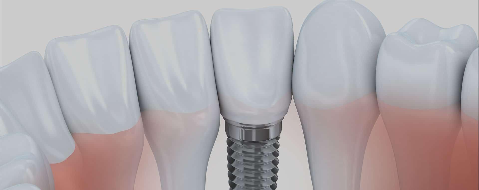 yardley dental implants dentist