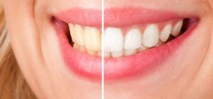 5 ways to keep your teeth white after a whitening treatment