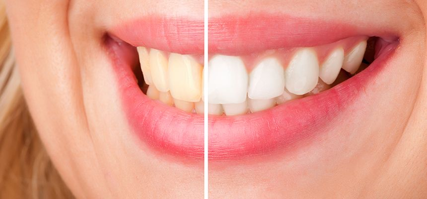 Helpful Tips To Keep Your Teeth White