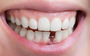 Mini Dental Implants