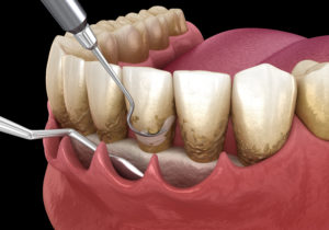 patient getting periodontal treatment