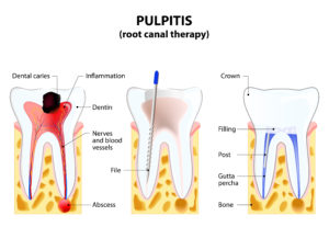 Pulpitis root canal treatment therapy