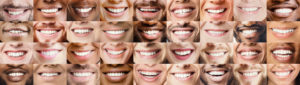 collage of multi ethnic toothy people smiles